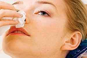 Tratamiento casero para la hemorragia nasal