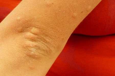 Picaduras de insectos Causas, síntomas y tratamiento