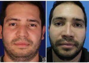 bichectomia mejorar el rostro del hombre