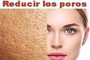 reducir sus poros